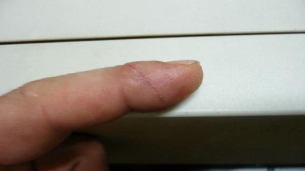 La ferita al dito risulta, almeno in superficie semicicatrizzata